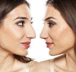 bestcosmeticsurgeons.com nose job