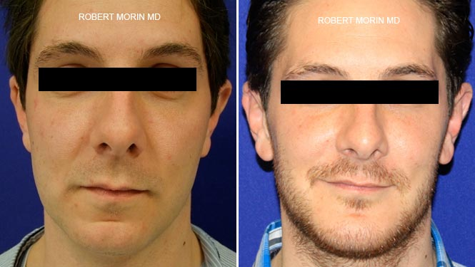 chin implant or filler